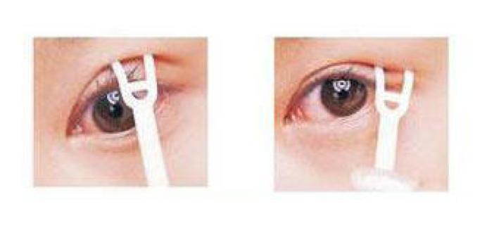 double eyelid example
