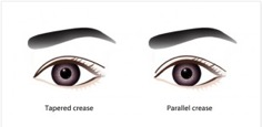 common eyelids