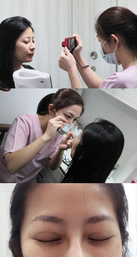 preparation for double eyelid