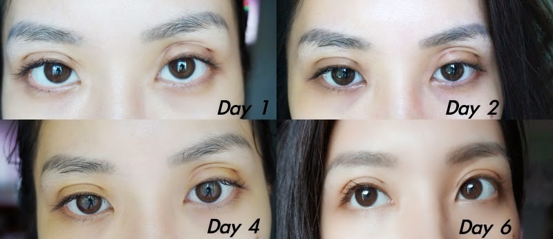 korean double eyelid before and after