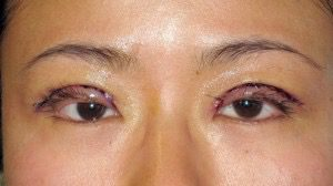 photo of a woman after double eyelid surgery