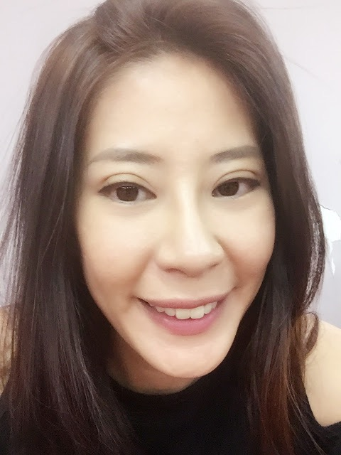 2 weeks after double eyelid surgery