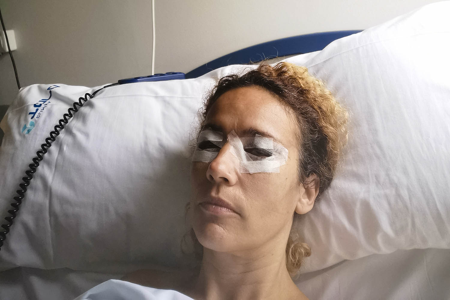 Woman patient in hospital after blepharoplasty